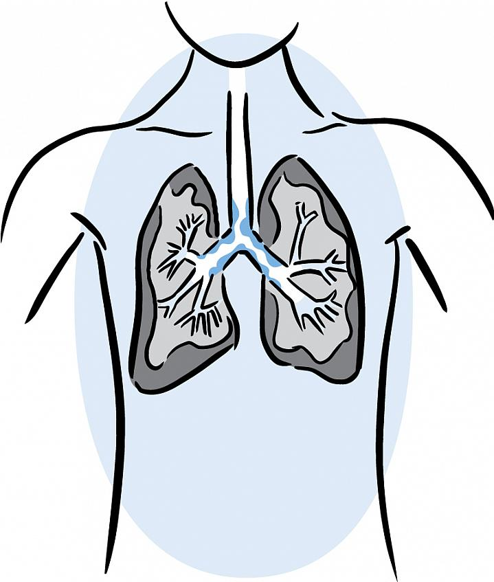 Illustration of lungs with mucus.