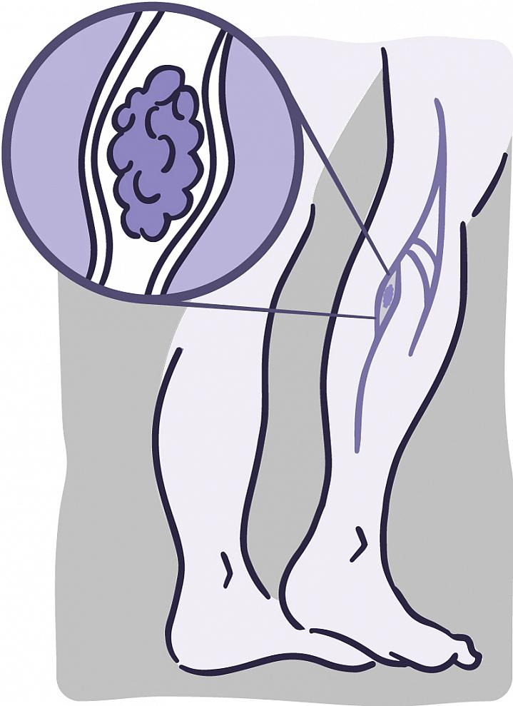 Illustration of the veins in the lower leg and a close-up of a blood clot lodged in a vein.