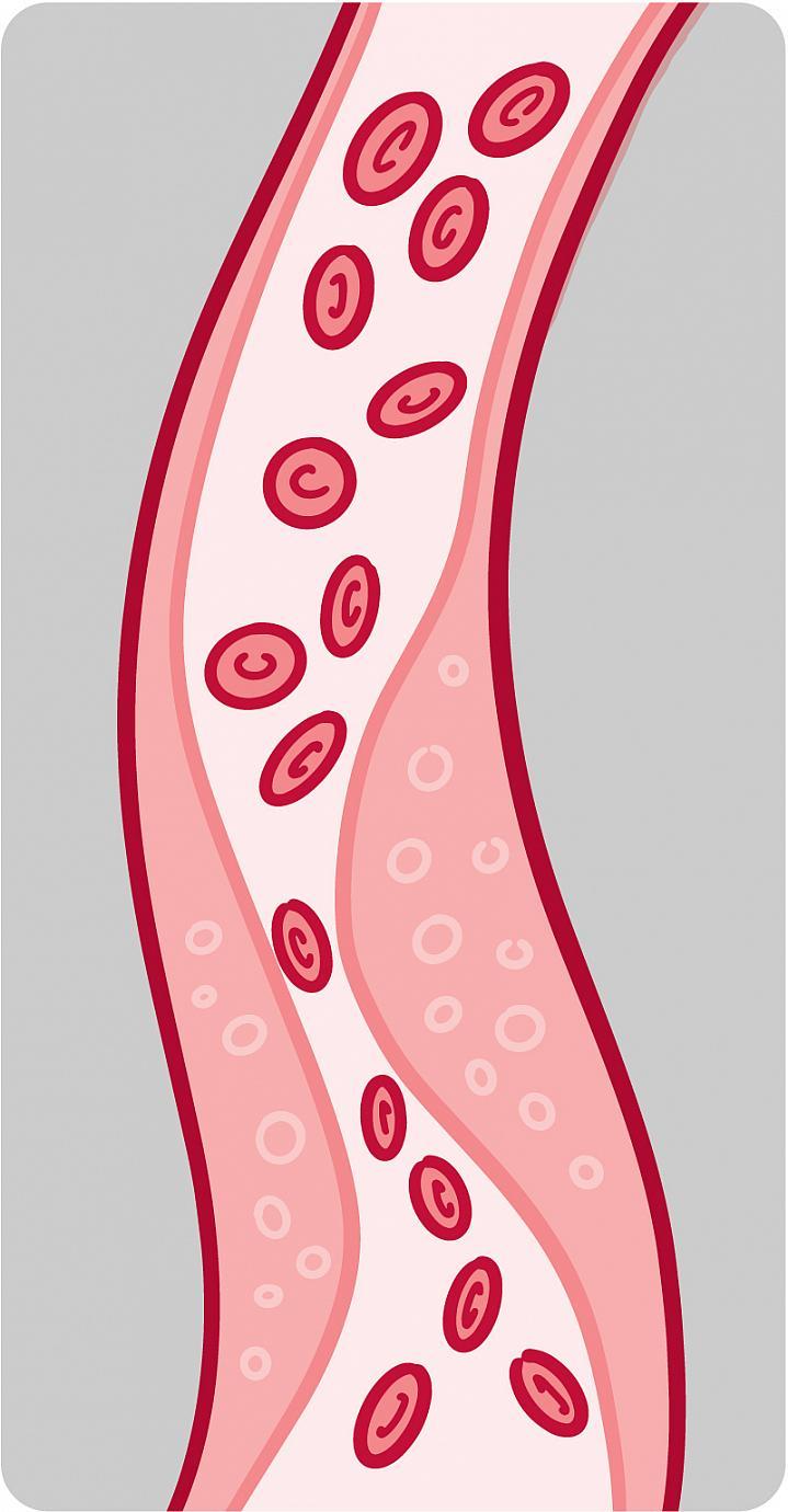 Illustration of a blood vessel with plaque buildup