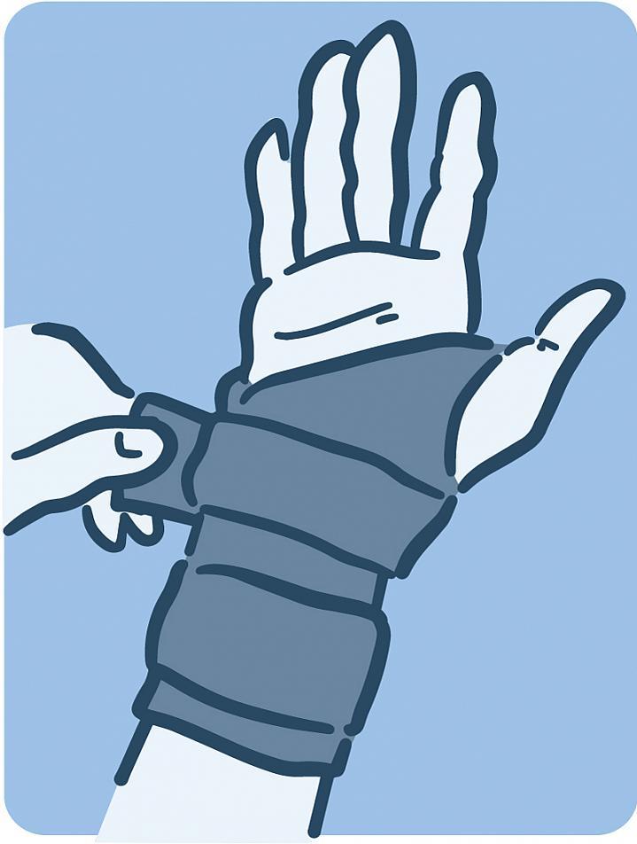 Illustration of a hand brace